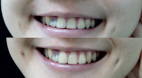 how to make braces less noticeable