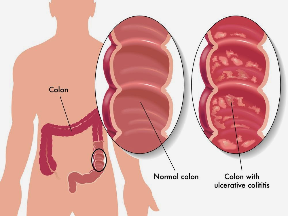 what are the chances of surviving stage 4 liver cancer