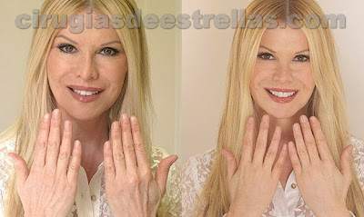 cindy jackson antes y despues