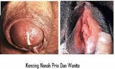 Cara Menyembuhkan Penyakit Gonorrhea & Chlamydia