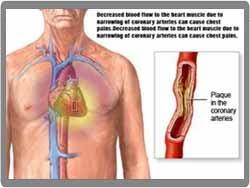 Mencegah Penyakit Jantung Dengan Menurunkan Kadar Kolesterol LDL