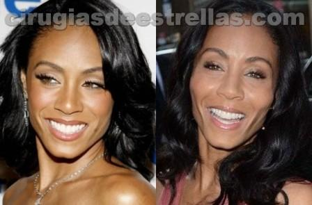 Jada Pinkett Smith tuvo un implante de pomulos?