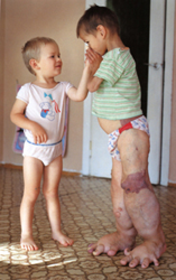 Chernobyl Human Mutations Pictures