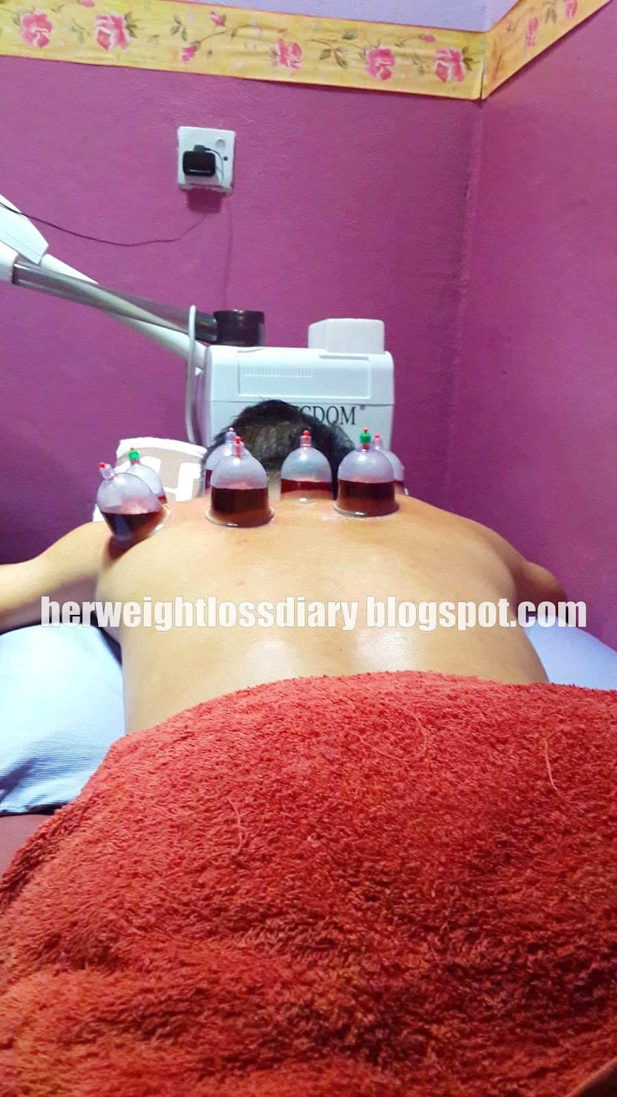 bekam, cupping therapy for weight loss