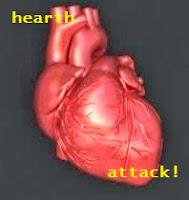 pengertian-serangan-jantung-koroner