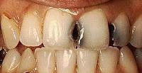 Karang Gigi Hitam karang gigi parah