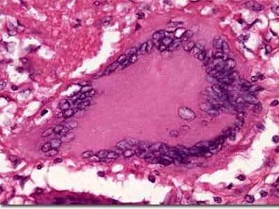 TUBERCULINUM (T.K. Tuberculina de Roch. Obtenido de un Cultivo de Mycobacterium Tuberculosis)