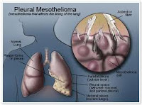 Mesothelioma of the pleura