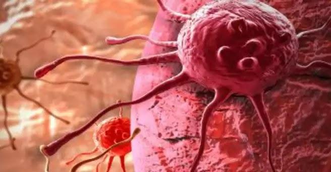 Φυτό σκοτώνει το 98% των καρκινικών κυττάρων μέσα σε 16 ώρες – Aναυδοι οι επιστήμονες!