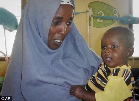 Perubahan wajah bayi kebulur Somalia dari kurus kering menjadi montel