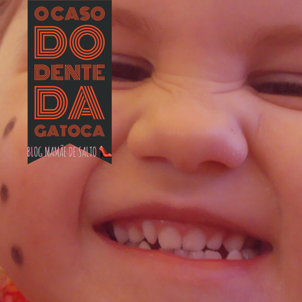 O Caso do Dente da Gatoca ... blog Mamãe de Salto