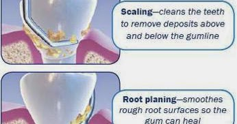 Omni Dental Group Scaling And Root Planing