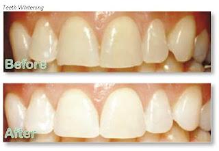 إصفرار الأسنان السبب والعلاج