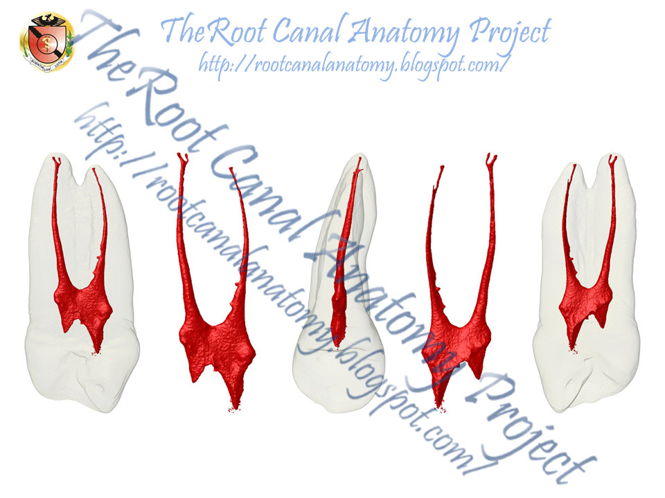 The Root Canal Anatomy Project: Maxillary First Premolar