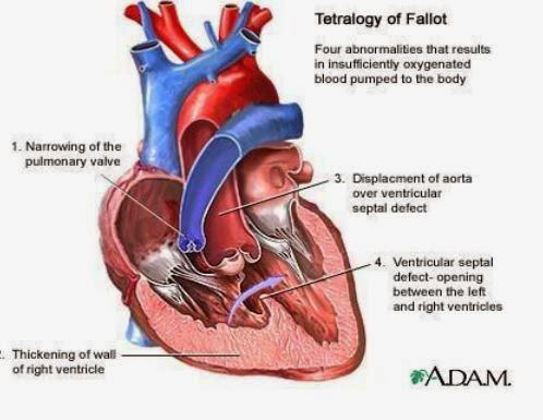Tứ chứng Fallot - Siêu âm tim