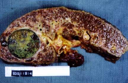 tumore al fegato fase terminale