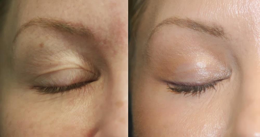 triamcinolone lighten skin