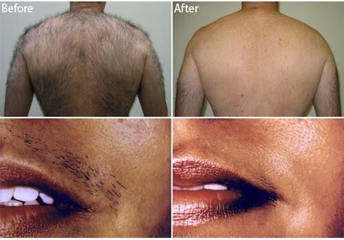 """خلطة سحرية لإزالة الشعر نهائياً من جسمك و بطريقة سهلة جداً """"نتيجه هائلة ومذهله"""" لازم تجربوها  !!"""