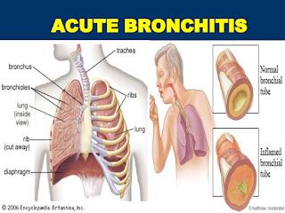 Bronkitis dapat menjadi penyebab bau nafas?