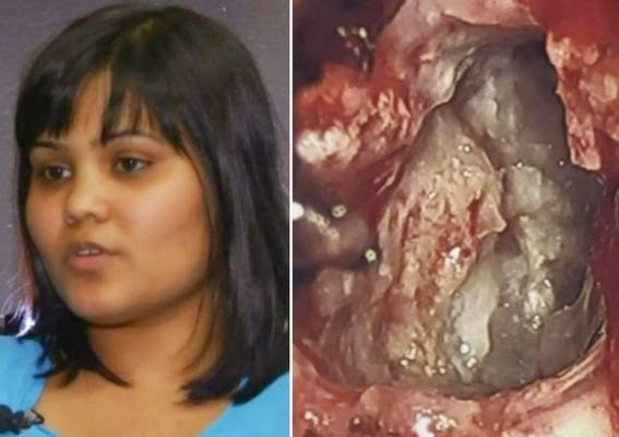 An embryonic twin has been found inside a woman's brain while she was having surgery