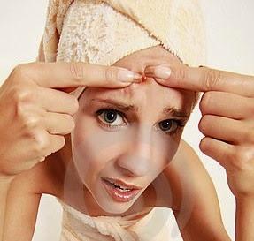 jerawat di wajah, acne, kecantikan, wanita