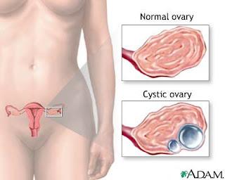Ketumbuhan Cyst dikecutkan dengan amalan GLA Shaklee