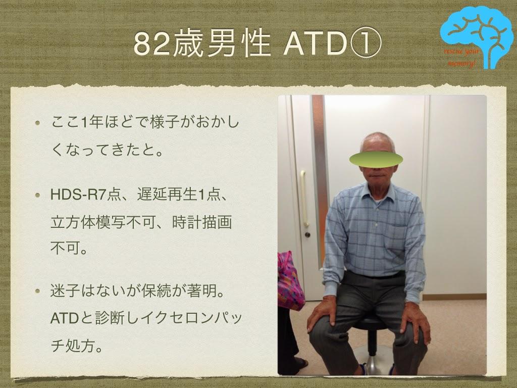 アルツハイマー型認知症 82歳男性の写真