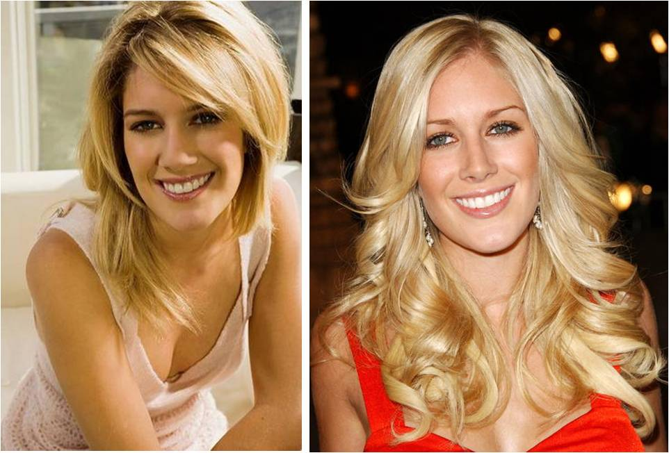 heidi montag after surgery. hot house heidi montag before