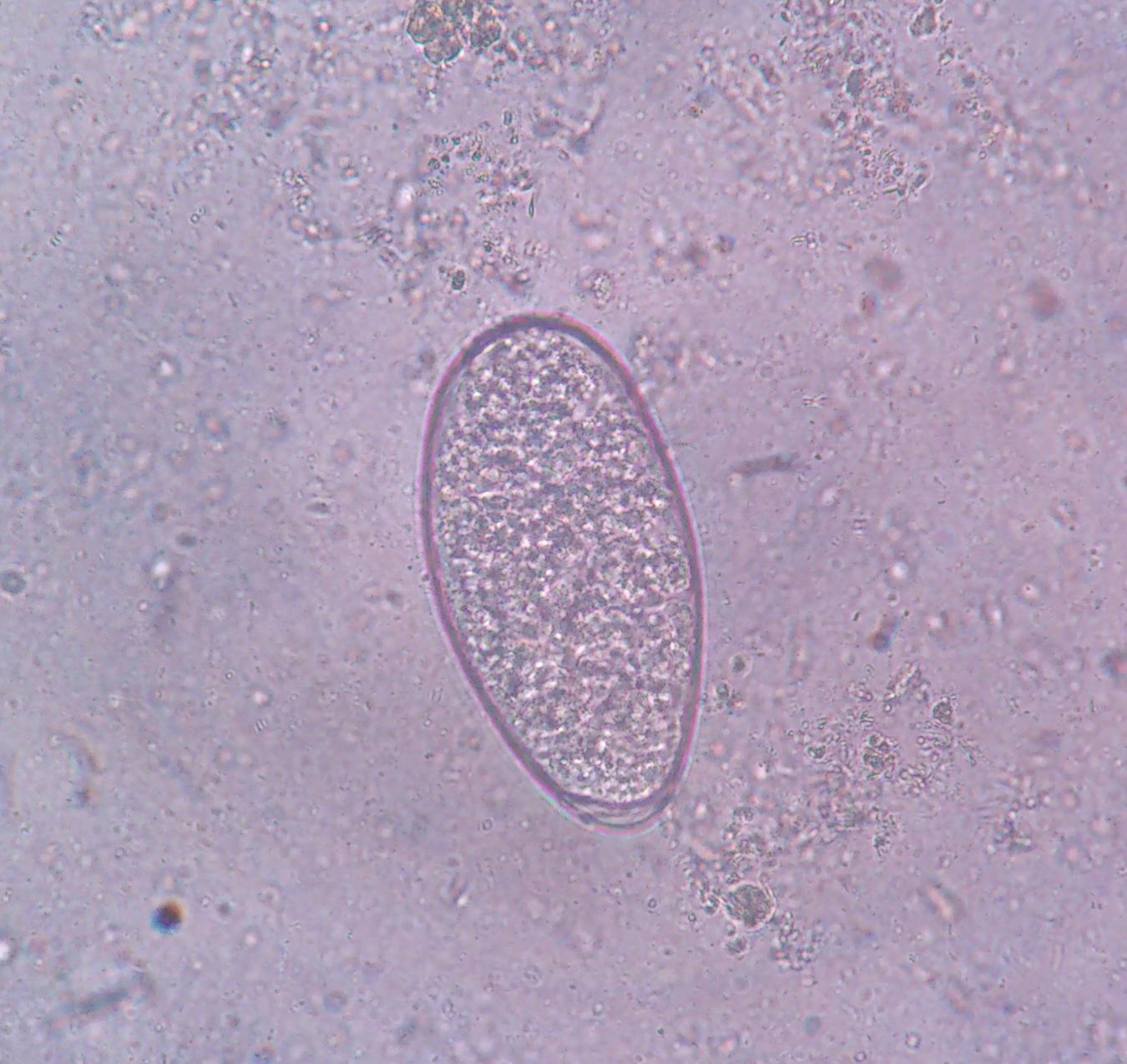 Creepy Dreadful Wonderful Parasites October 2012