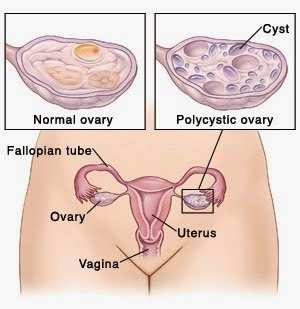 Chennai Specialty Treatment Clinic for Poly Cystic Ovary Disease - Syndrome, Velachery, Chennai, Tamil nadu, India, dr.sendhil kumar panruti