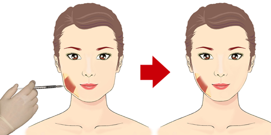 Jaw Muscle Botox as Our Jaw Muscle Which