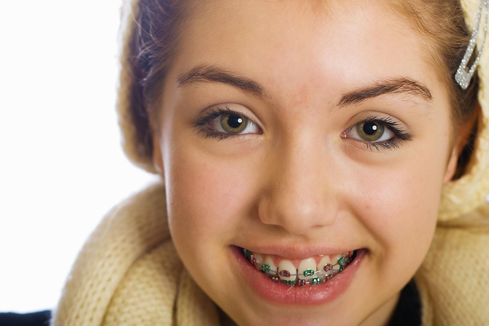 Promovago noviembre 2014 for W de porter ortodoncia