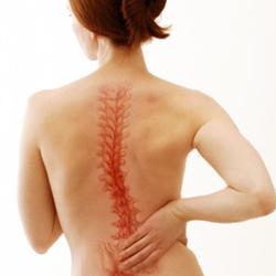 Scoliosis - Causes