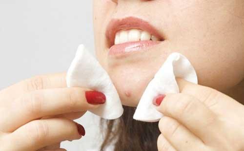Preguntas y respuestas sobre el acne