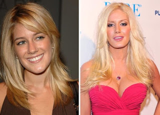 Kegagalan Operasi Plastik Heidi Montag