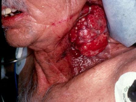 foto cancer laringe: