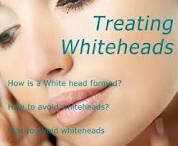 Beauty tips to get gone whiteheads