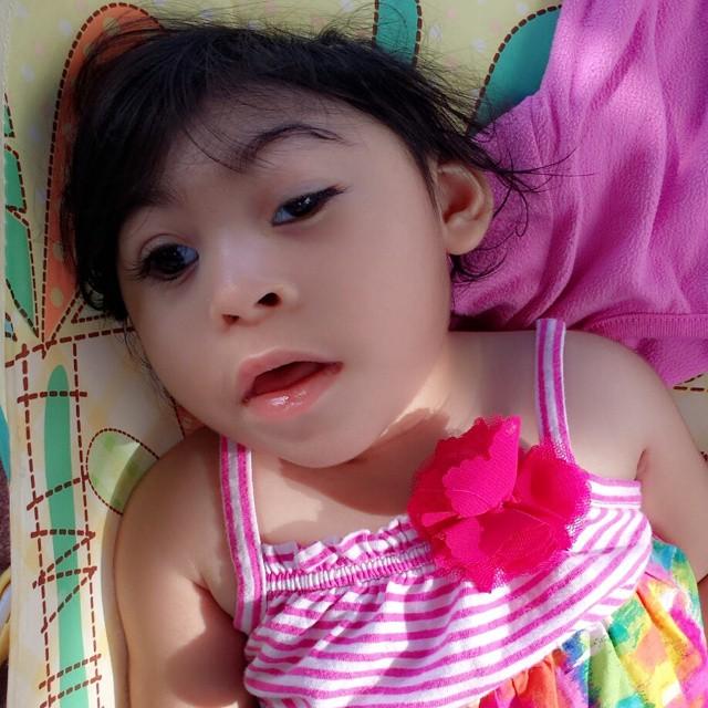 Anencephalic baby birth defects