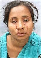 Seorang Anak Perempuan India Memiliki Air Mata Darah