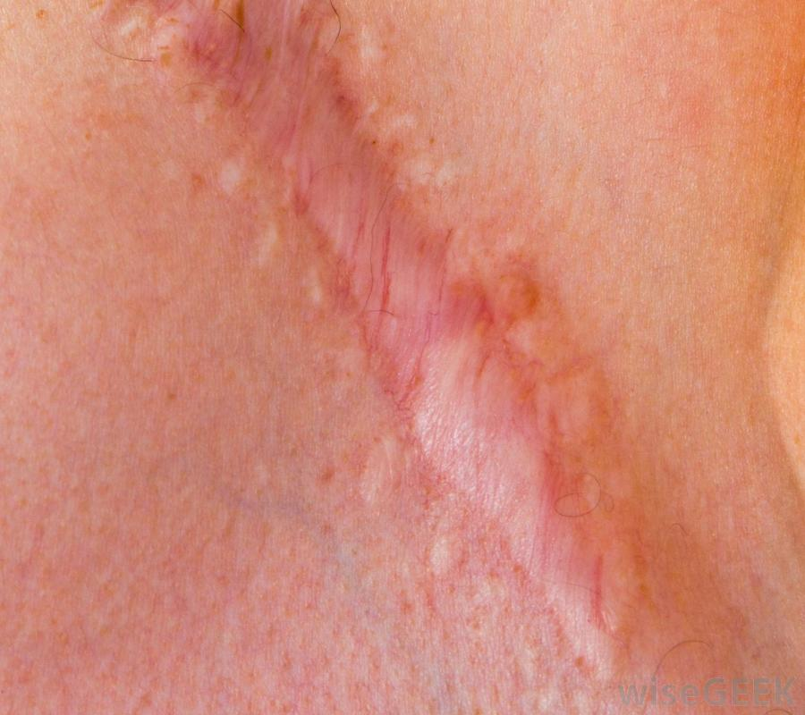 Knee Replacement Surgery Scar Tissue http://totalkneereplacement-elsie.blogspot.com/