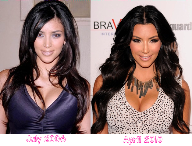 Bossmaurice s blog photos did kim kardashian have plastic surgery