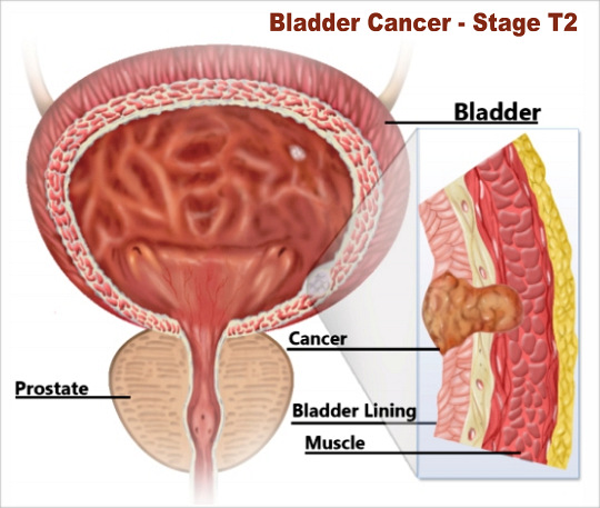 Bladder Cancer Stage T2