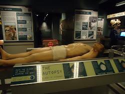 Autopsia del cuerpo.