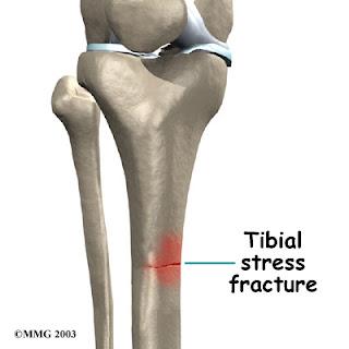 Fractura de diafisis tibial / Rehabilitación Fisica