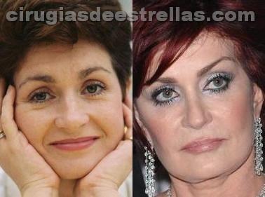 Sharon Osbourne antes y después