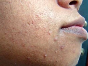 What is acne and how to treat it