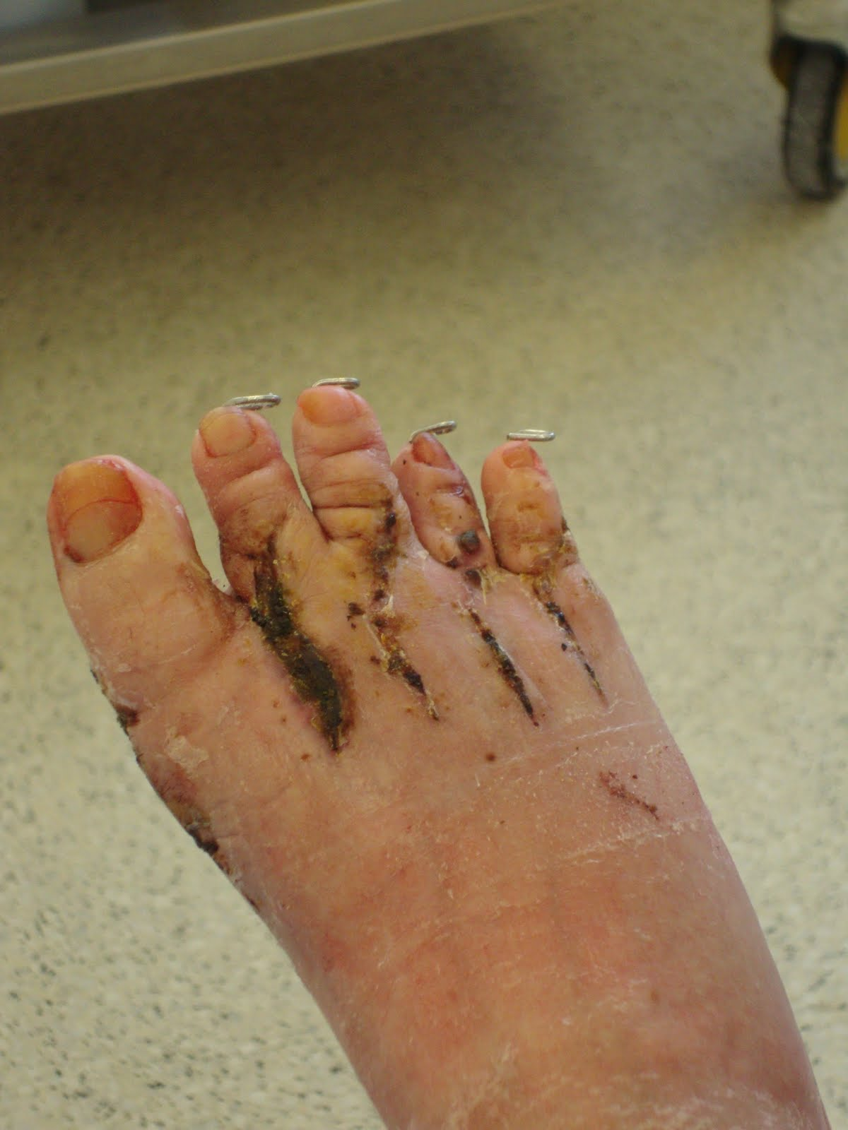 Gwen\'s Feet (and Hand): K-Wire Removal
