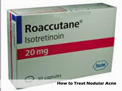 how to treat nodular acne cause