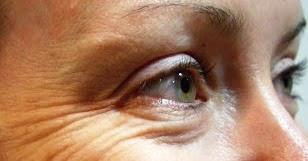 Cara Mudah Mengatasi Masalah Kerutan di Bawah Mata
