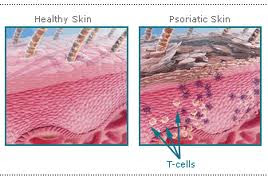 penyakit kulit